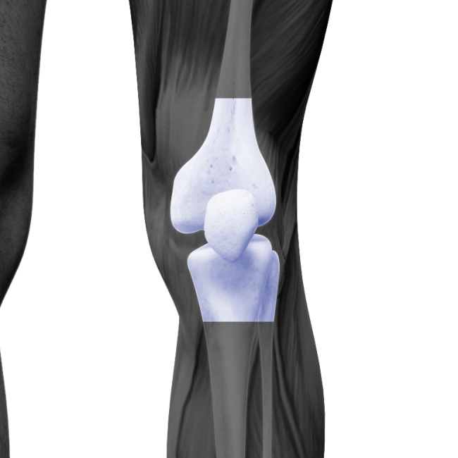 Knee | Doctors & Surgeons | The Orthopedic Institute of NJ
