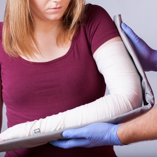Elbow Fractures