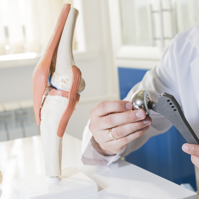 Joint Replacement and Revision Surgery